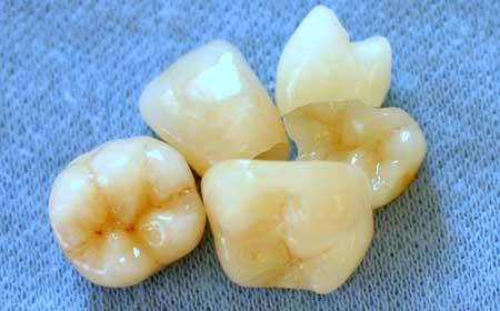 Phoenix Dental Arts Services Photo